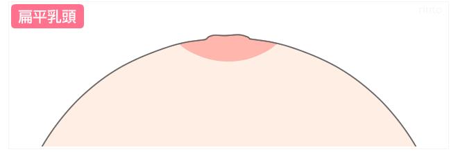扁平乳頭のイラスト