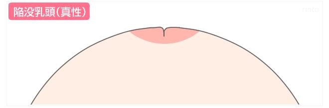 陥没乳頭(真性)のイラスト