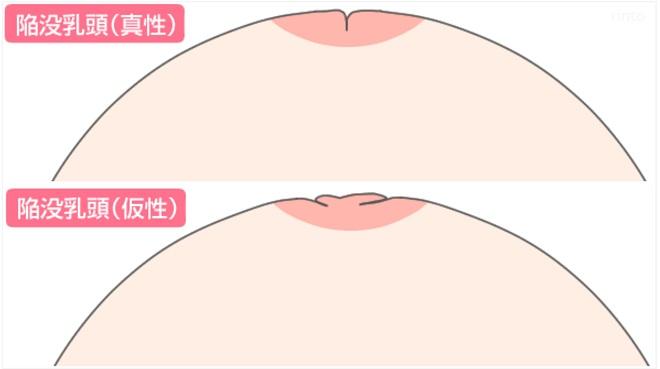 陥没乳頭のイラスト