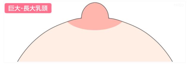 巨大・長大乳頭のイラスト