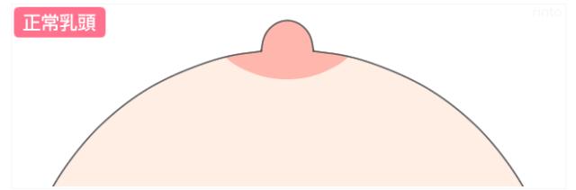 正常乳頭のイラスト