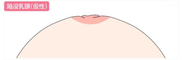 陥没乳頭(仮性)のイラスト